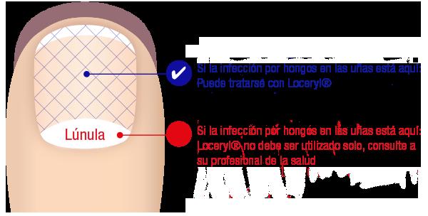 Si el hongo de las uñas es posible contagiarse