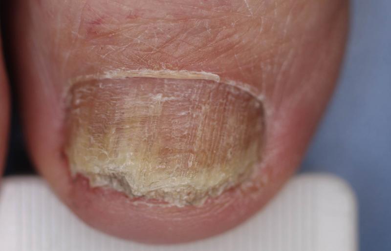 tipos de hongos en las uñas delos pies imagenes